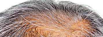 ADP Super Hair Growth System
