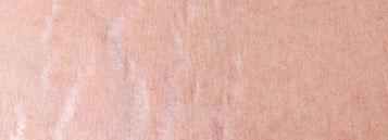 MooLife™ Breast Stretch Mark Cream